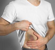 Fenizon contusioni muscolari